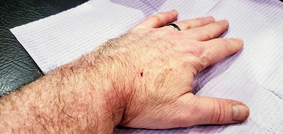 hand post implant